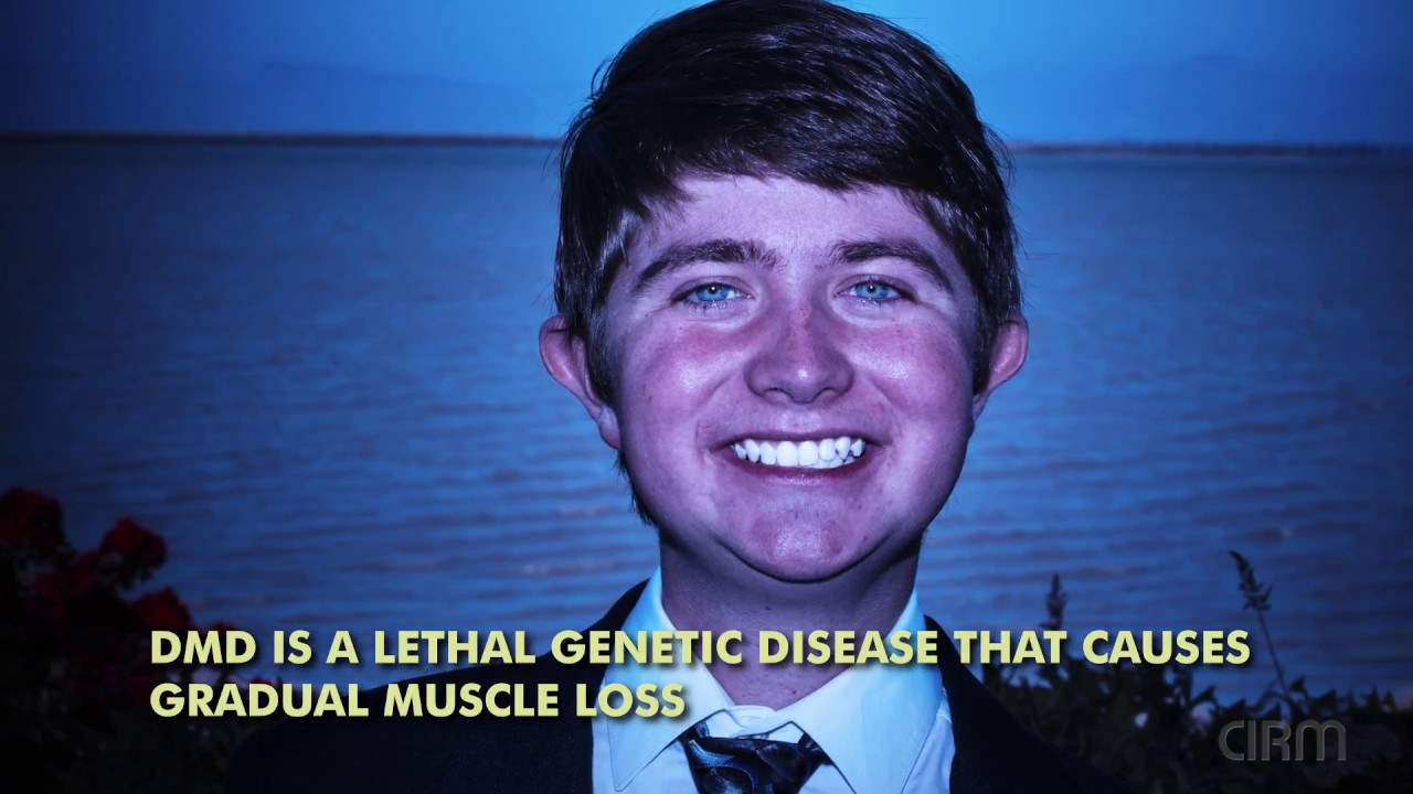 Stem Cell Therapy for Duchenne Muscular Dystrophy: Caleb Sizemore
